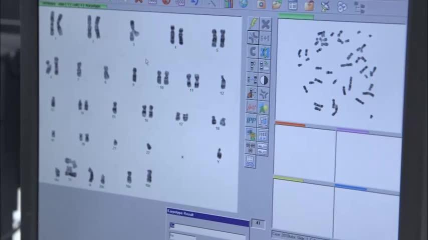 Cytogenetic Technology Program Video in English