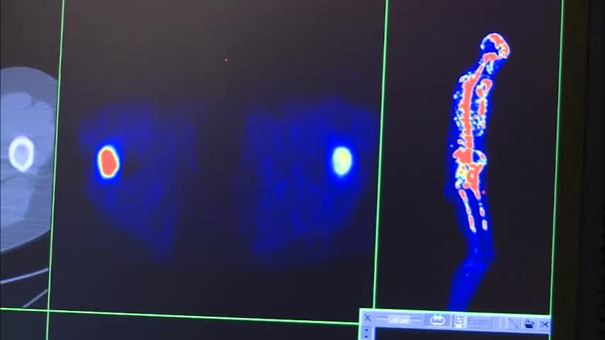 Medical Dosimetry Program Video in English